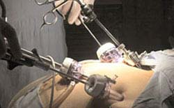 Laparoscopic Mini Gastric Bypass Surgery In Delhi, Gurgaon